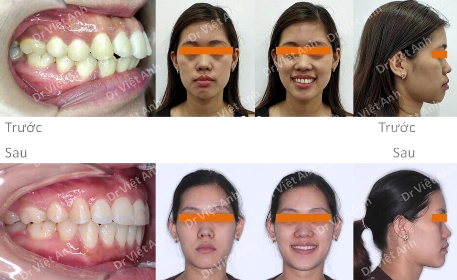 Niềng răng mặt trong chữa lại một ca niềng mặt ngoài bị hỏng
