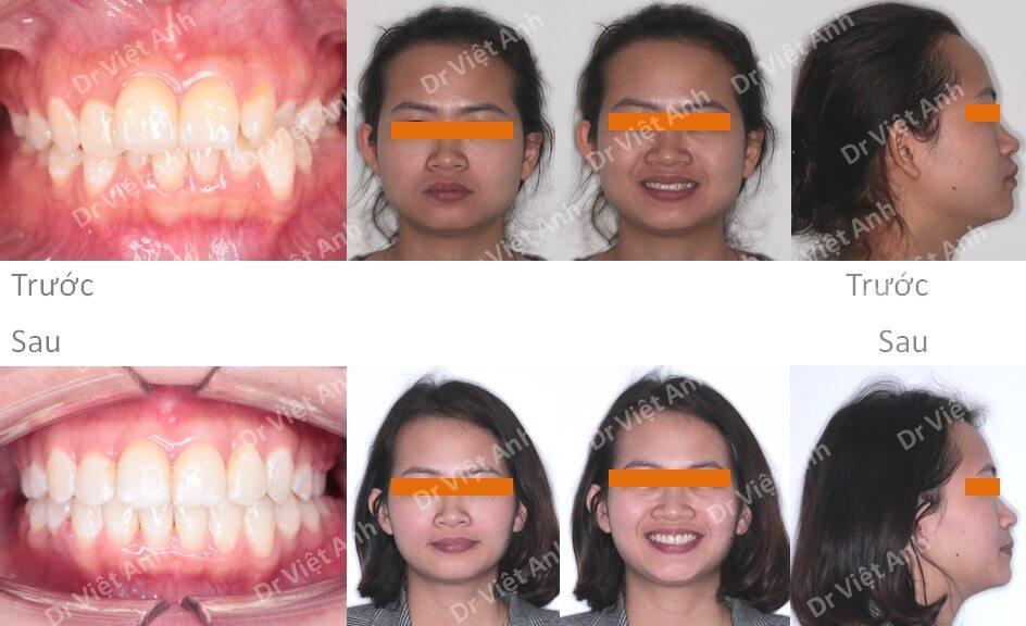 Niềng răng khấp khểnh, hô mà không cần nhổ răng, hoàn thành sau 13 tháng