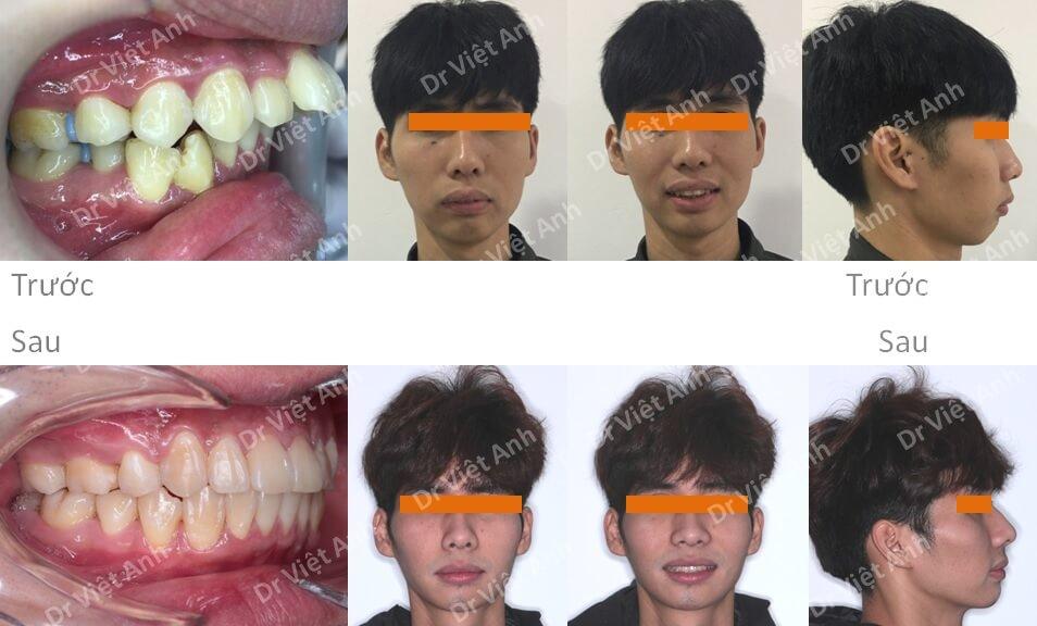Ca niềng răng mặt trong đỉnh cao: khắc phục hô xương, cằm lẹm sau 2 năm