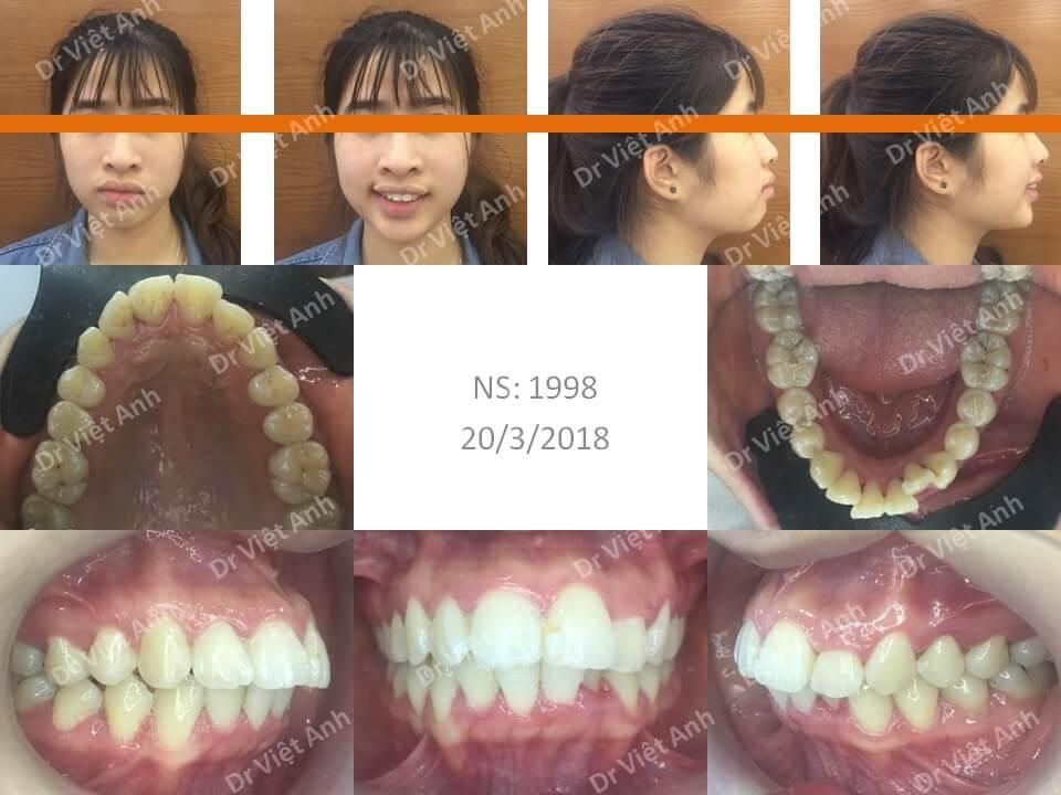 Niềng răng hô, lộn xộn hoàn thành sau 22 tháng