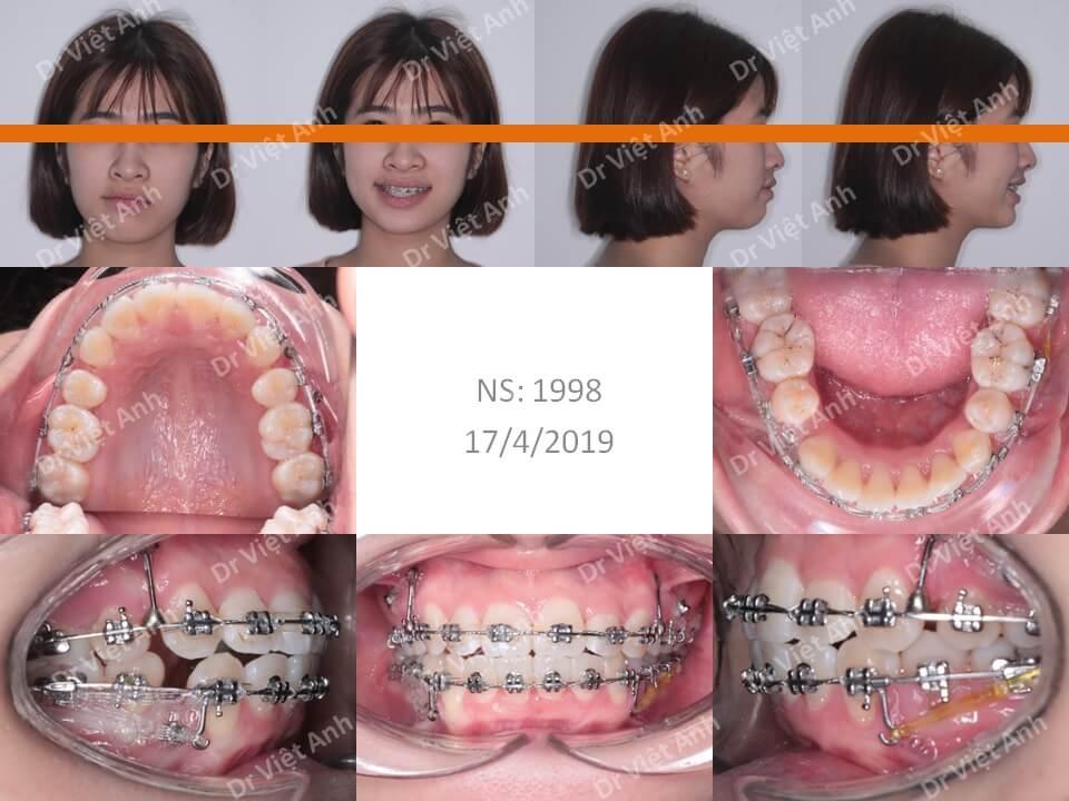 Niềng răng hô, lộn xộn hoàn thành sau 22 tháng 2
