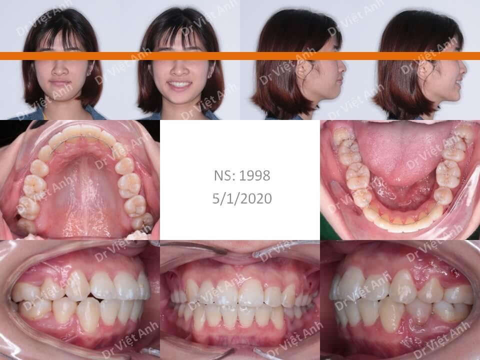 Niềng răng hô, lộn xộn hoàn thành sau 22 tháng 3