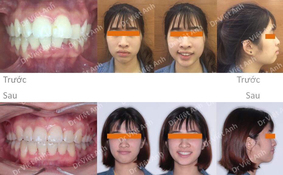 Niềng răng hô, lộn xộn hoàn thành sau 22 tháng 4