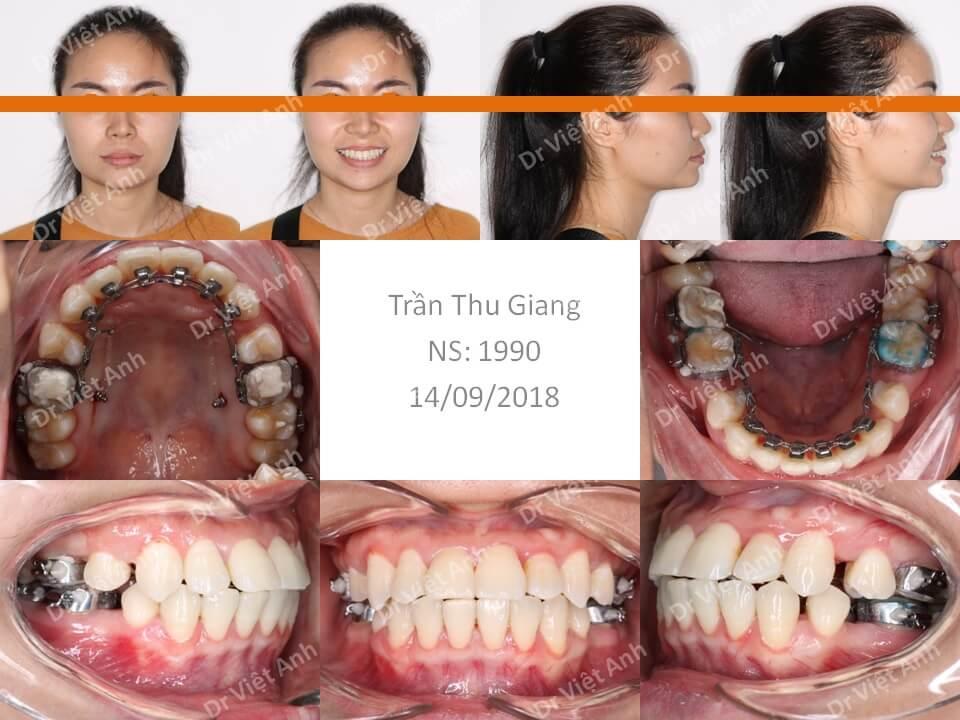 Niềng răng khểnh bằng mắc cài mặt lưỡi hoàn thành sau 2 năm
