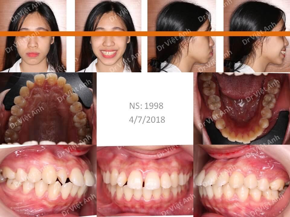 Bạn nữ hô nặng sau 1,5 năm niềng răng thành hot girl