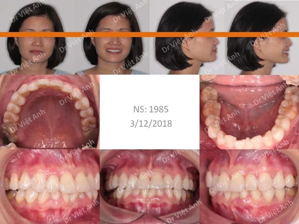 Niềng răng lộn xộn, hẹp hàm dưới bằng mắc cài mặt trong