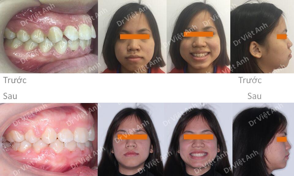 Thay đổi mũi, môi, cằm sau khi niềng răng hô