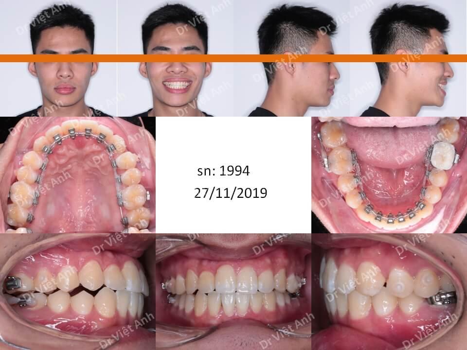 Niềng răng mặt trong khắc phục tình trạng lệch mặt, khớp cắn ngược sau 6 tháng