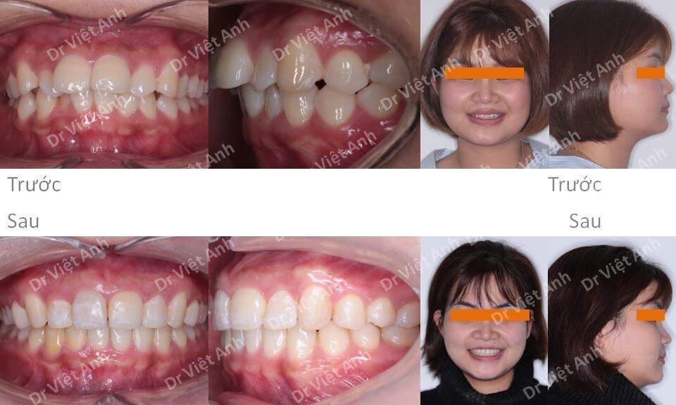 Niềng răng khấp khểnh, hàm trên chìa chỉ sau 8 tháng bằng mắc cài mặt lưỡi