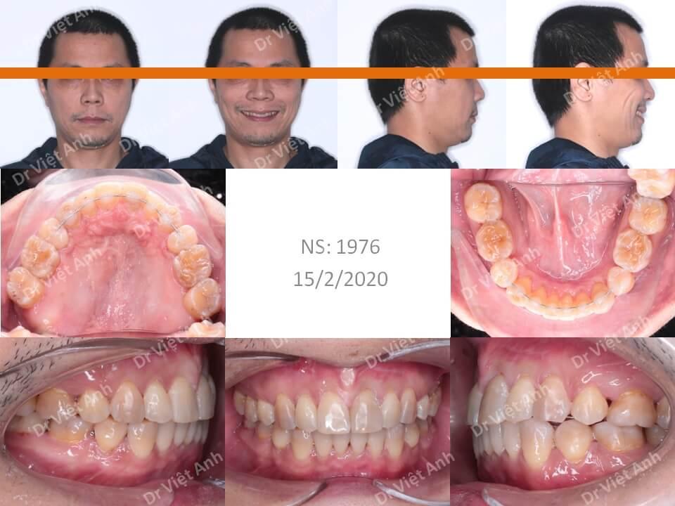 Niềng răng mặt lưỡi điều trị răng lộn xộn, hô cho khách hàng nam 41 tuổi