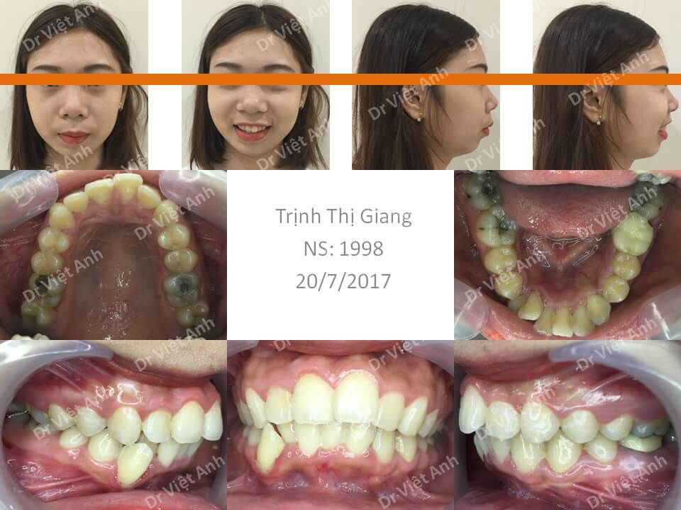 Niềng răng hô, cằm lẹm, nhổ răng hàm bị sâu thay cho răng số 4