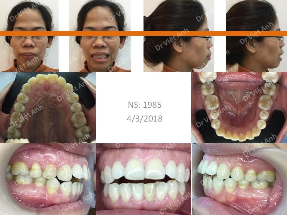 Niềng răng mặt lưỡi điều trị khớp cắn hở, hô, cằm lẹm sau 23 tháng