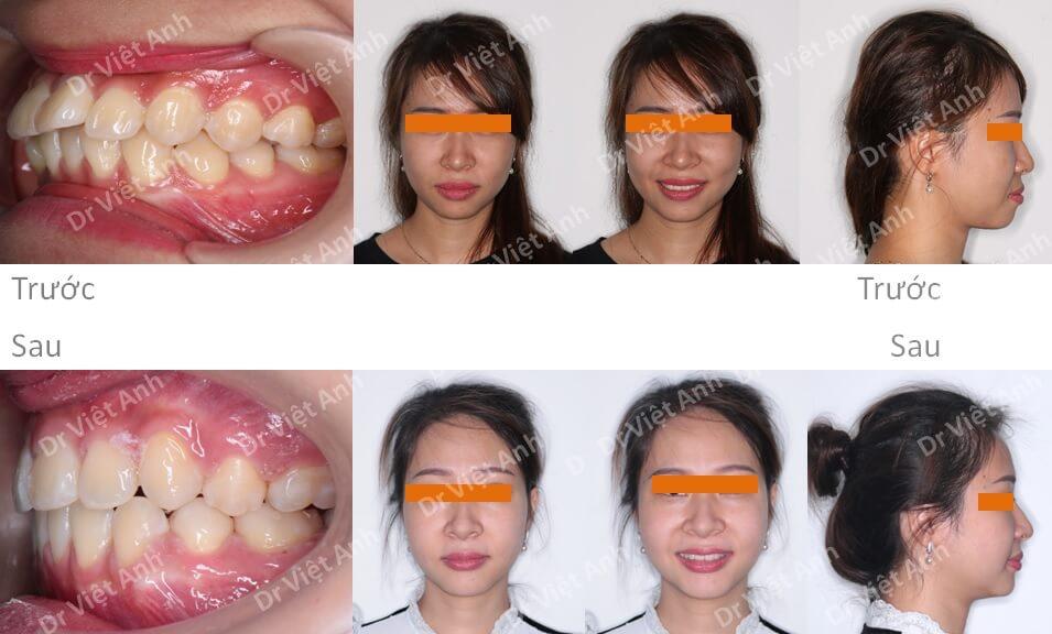 Góc nghiêng thay đổi hẳn sau 19 tháng niềng răng mặt trong chữa hô