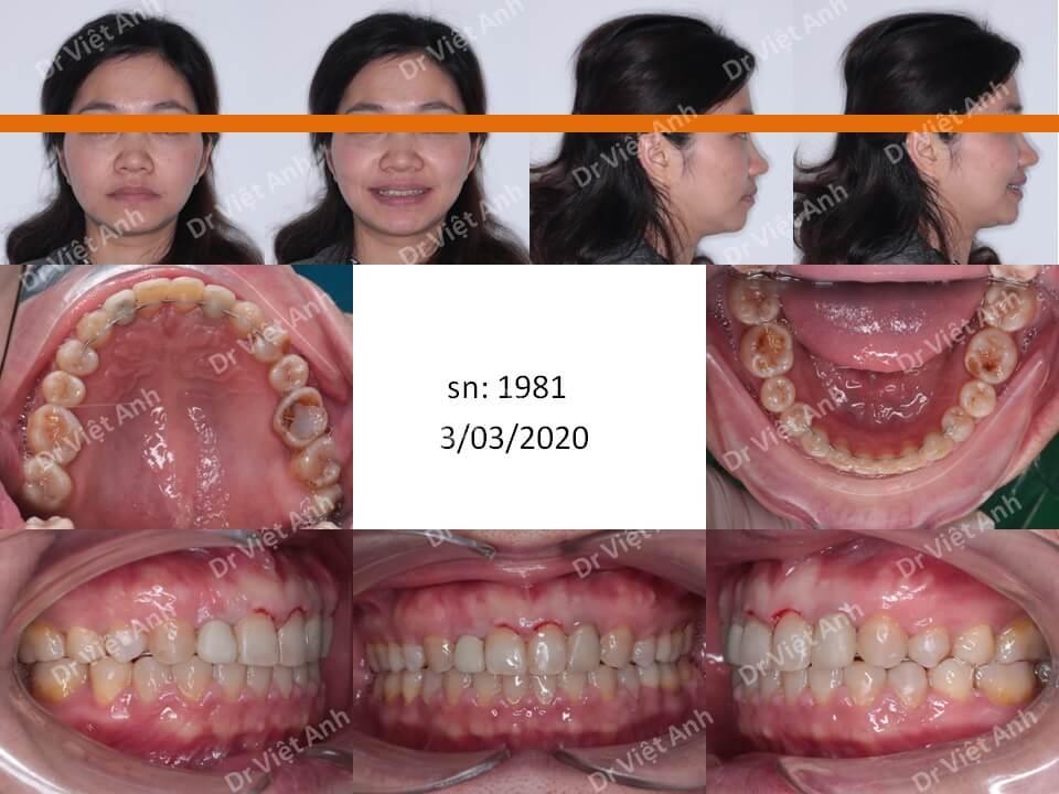 Niềng răng đóng kín khe thưa lớn sau khi nhổ răng kẹ cho khách hàng 38 tuổi