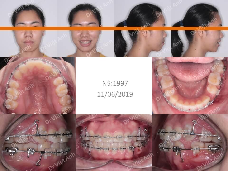 Niềng răng khểnh, hô hoàn thành sau hơn 1,5 năm bằng mắc cài pha lê