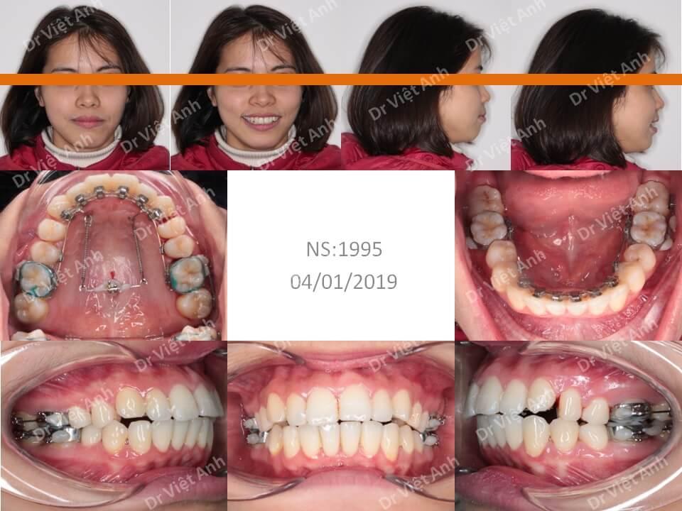 Niềng răng hô hoàn thành sau 1,5 năm bằng mắc cài mặt lưỡi
