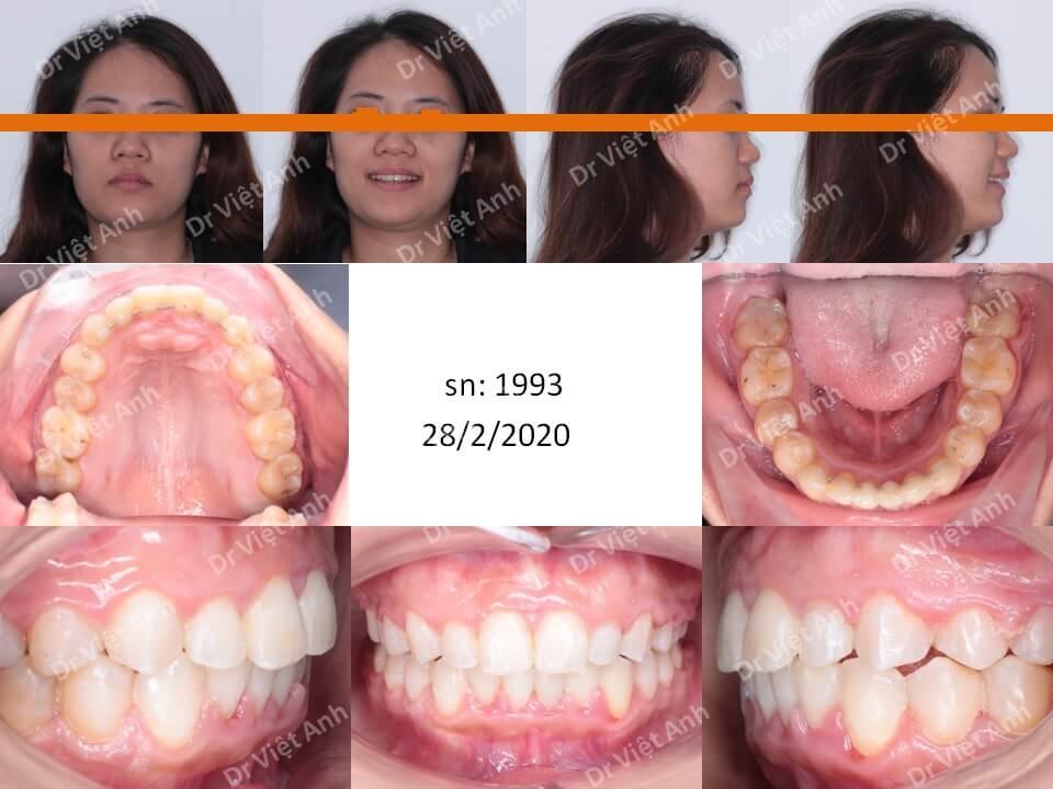 Niềng răng lộn xộn, hô nhẹ bằng phương pháp nong hàm & di xa