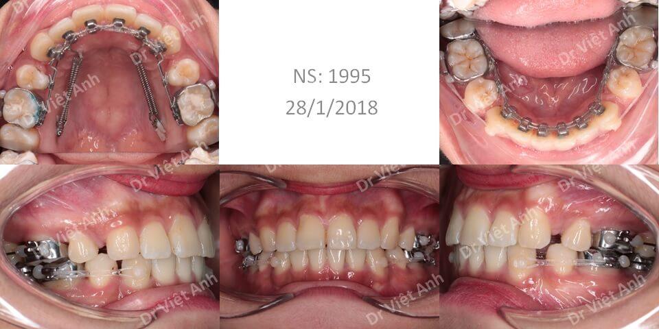 Niềng răng mặt trong chữa hô thành công, thay đổi khuôn mặt 1