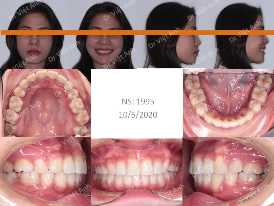 Niềng răng mặt trong chữa hô thành công, thay đổi khuôn mặt 2