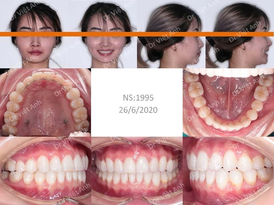 Niềng răng mặt lưỡi một ca răng lộn xộn, hô nhẹ nhỉ trong 10 tháng