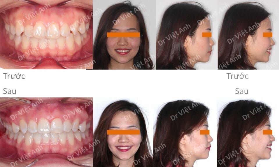 Niềng răng khểnh, lộn xộn hoàn thành sau 1,5 năm bằng mắc cài mặt trong