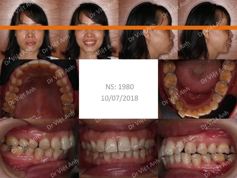 Niềng răng mặt trong một trường hợp hô hàm 38 tuổi hoàn thành sau 2 năm
