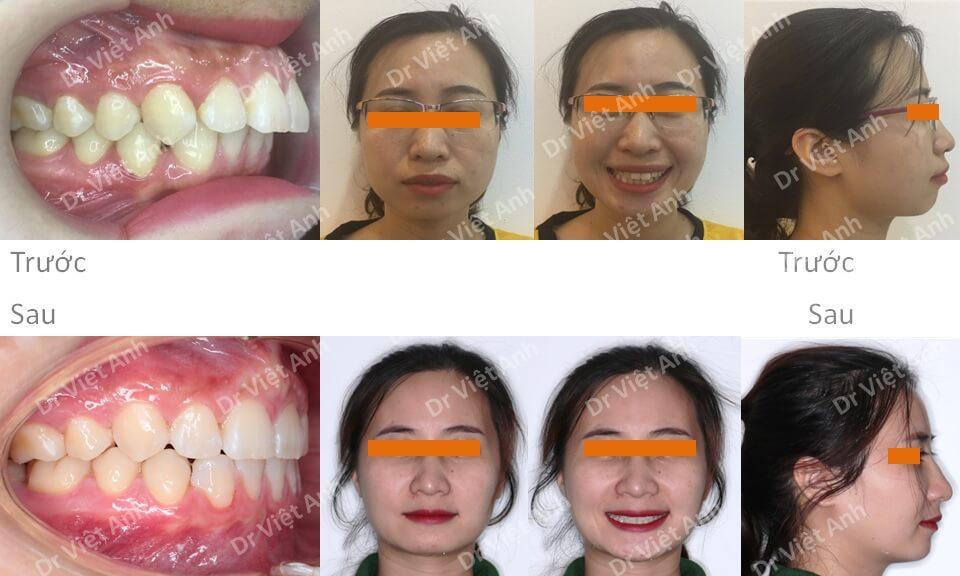 Niềng răng hô hàm trên, thiếu răng cửa dưới bằng mắc cài mặt lưỡi