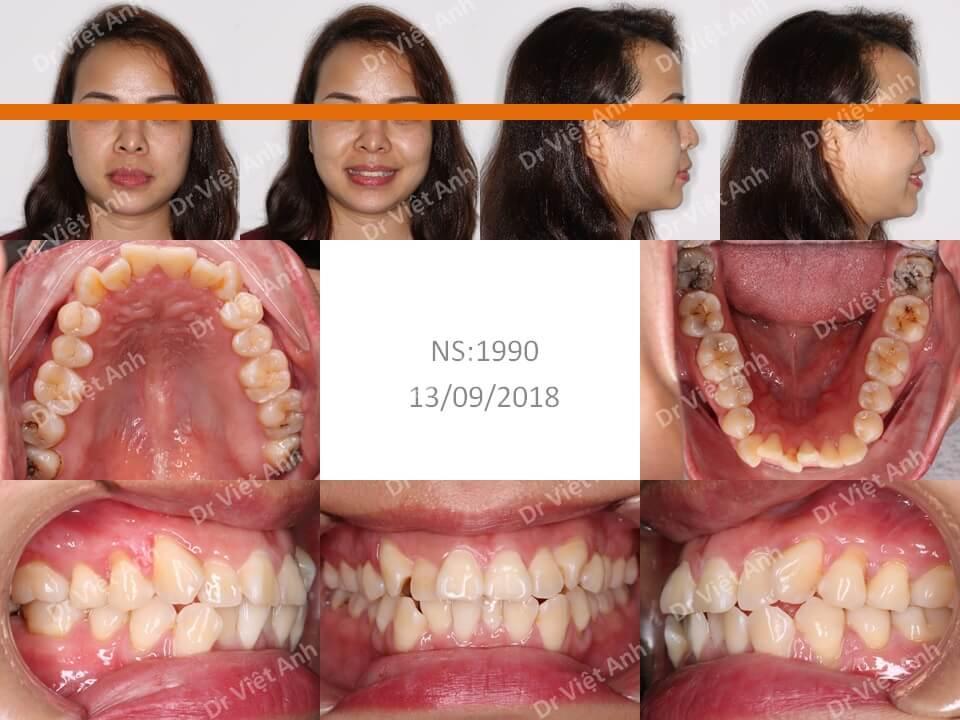 Một ca răng khấp khểnh lộn xộn được niềng răng mặt lưỡi thành công