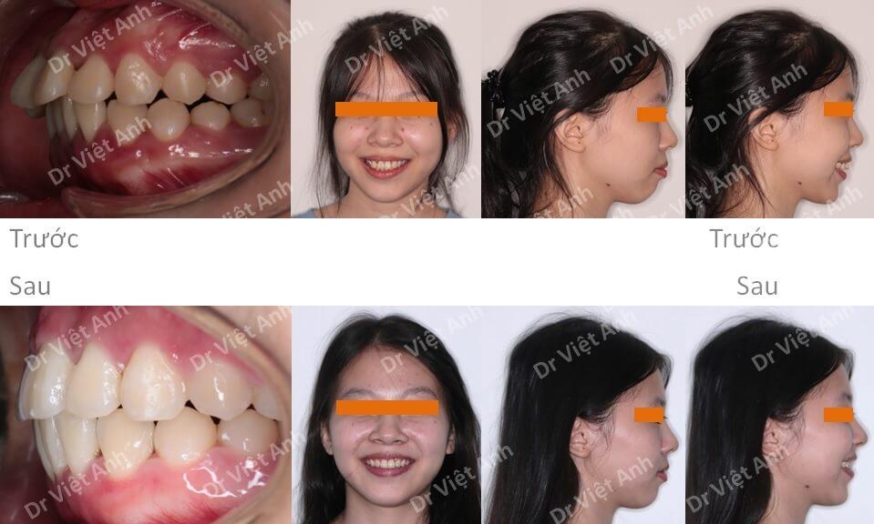 Một ca hô, lộn xộn, răng thưa được nắn chỉnh răng mặt lưỡi thành công mà không cần nhổ răng