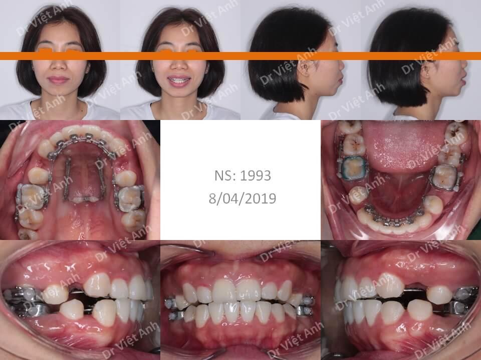 Niềng răng mặt trong điều trị thành công một ca hô hàm