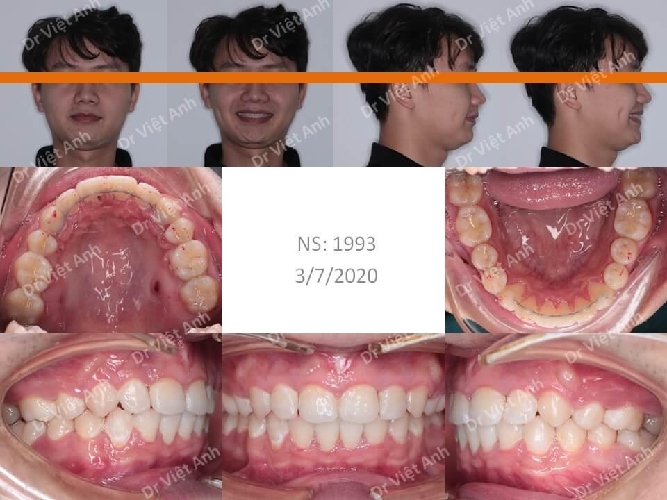 Ca hô hàm trên, khớp cắn rất sâu được nắn chỉnh răng mặt lưỡi thành công sau gần 2 năm