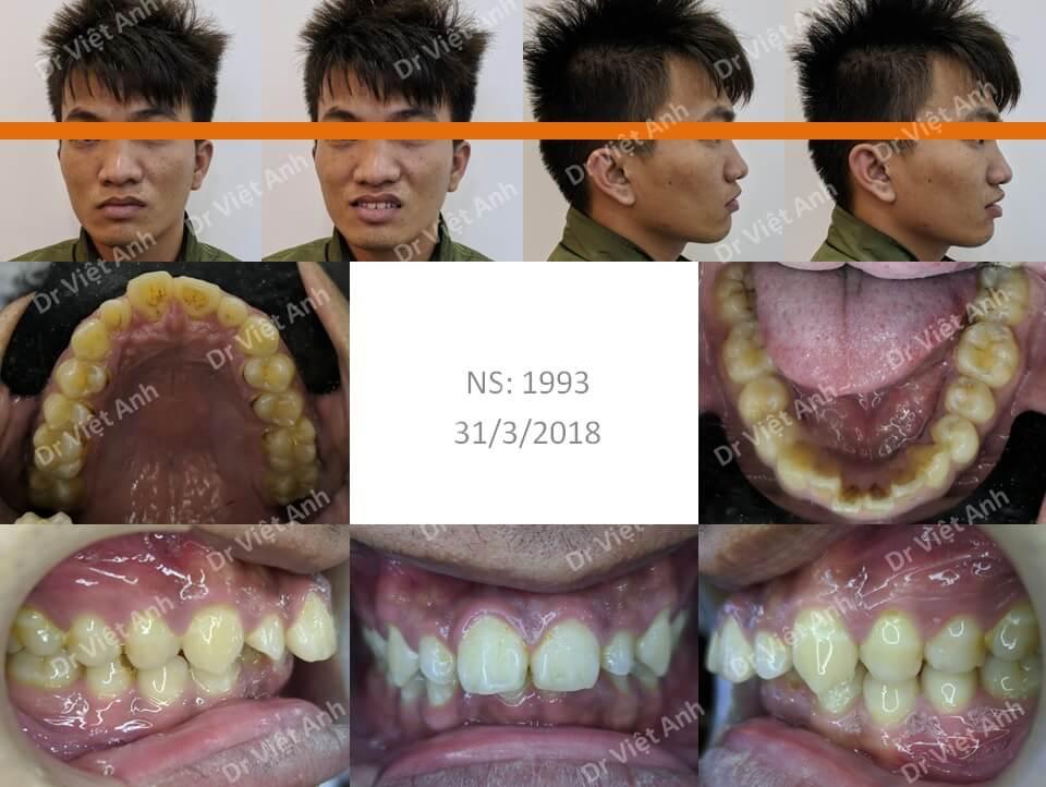 Thay đổi khuôn mặt - niềng răng hô cho một bạn nam bằng phương pháp niềng răng mặt lưỡi
