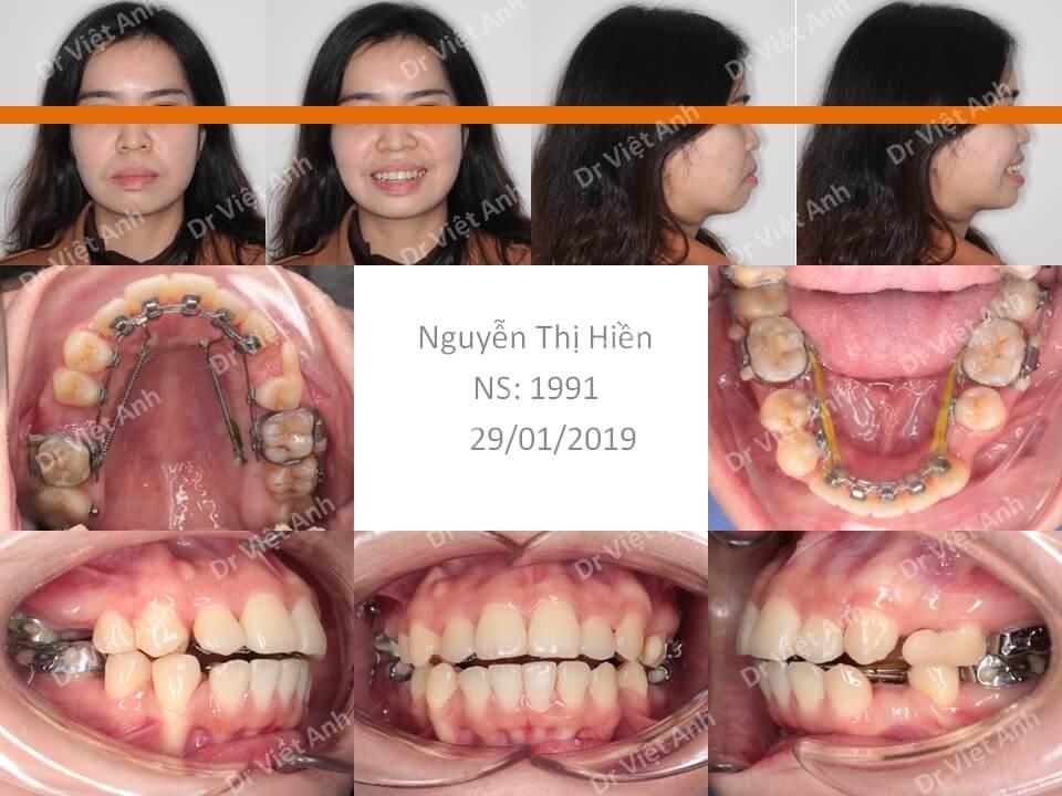 Ca niềng răng mặt lưỡi chữa hô phức tạp, đã nhổ 2 răng nanh khểnh, kết quả tuyệt vời