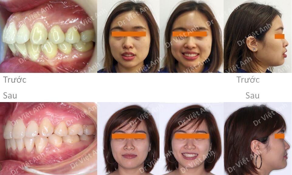 Niềng răng mặt lưỡi thành công mỹ mãn cho một trường hợp vẩu