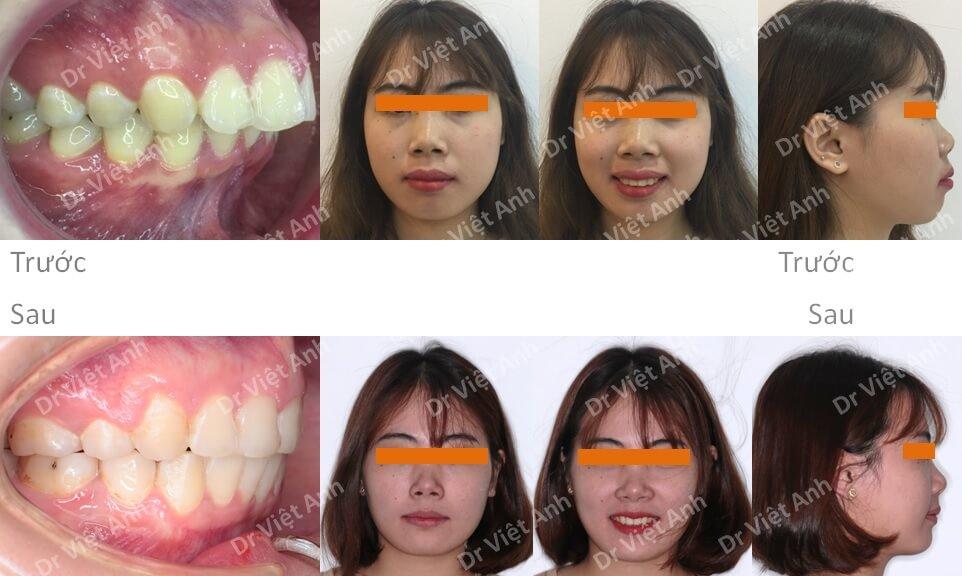 Niềng răng hô hàm trên, cằm lẹm, khớp cắn sâu thay đổi xuất sắc
