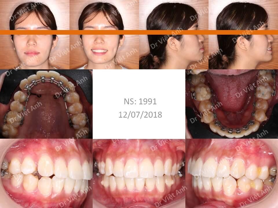 Niềng răng hô, lộn xộn, hàm hẹp thành công bằng mắc cài mặt lưỡi, không nhổ răng